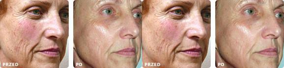 Les masques naturels pour le blanchiment de la personne