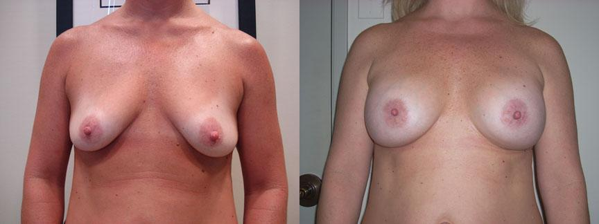 Welche Brustimplantat Gre ist die beste?