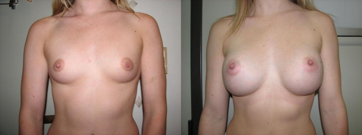 San Augmentation Brustimplantat : Bilder, Grafiken