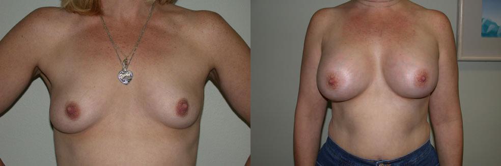 Brustvergrößerung mit Eigenfett-Stammzellen: Dr