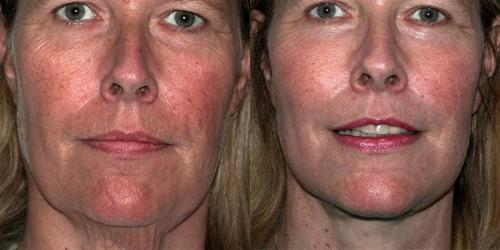 Le moyen effectif blanchissant la peau