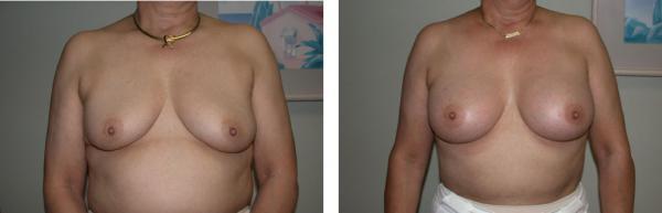 Chirurgie San Diego Brustimplantate
