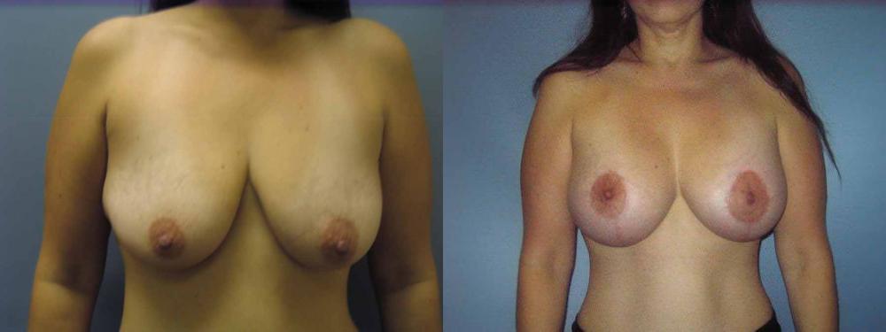Cancer du sein : la reconstruction mammaire, non merci