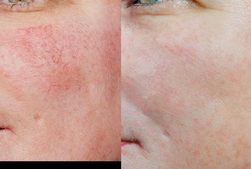 Laugmentation de la pigmentation de la personne