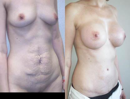 Augmentation mammaire ne ga