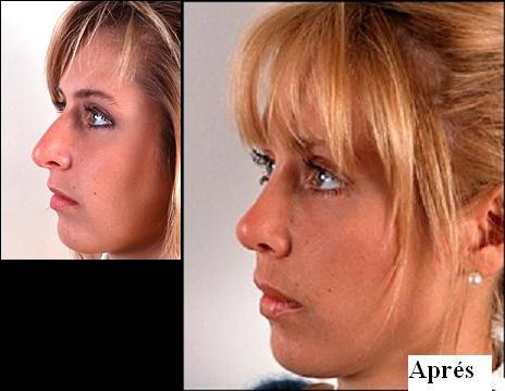 chirurgie rhinoplastie prix montreal. Black Bedroom Furniture Sets. Home Design Ideas