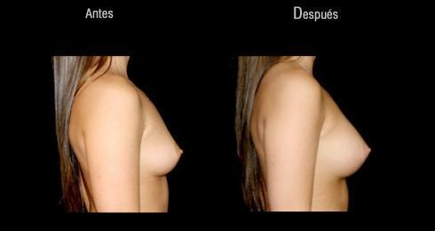 Implante de senos donar sitio