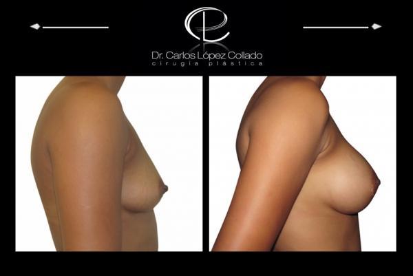 Reconstruction du sein apres mastectomie - Forums -