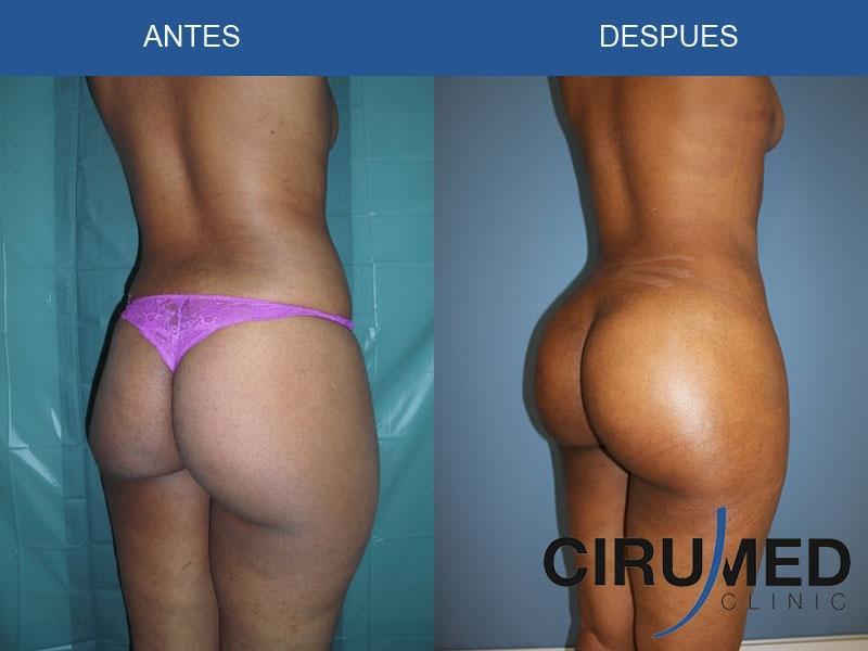Brazillian Butt Lift 61