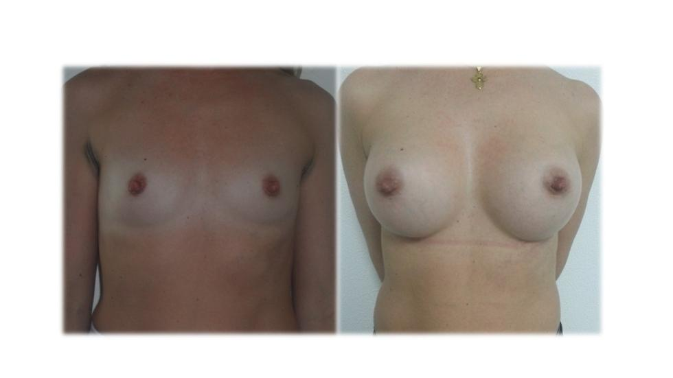 Transfert graisseux pour reconstruction mammaire