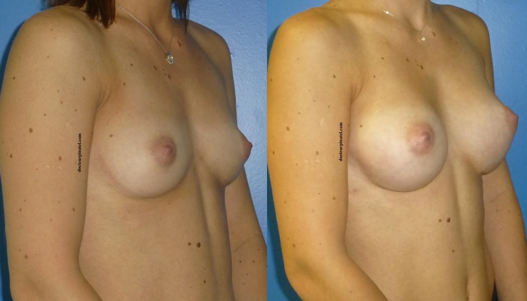 Prothse mammaire en silicone de dernire gnration