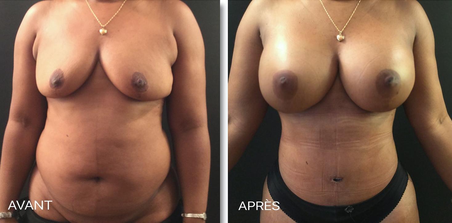 Jacksonville florida augmentation mammaire